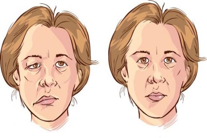 ¿Qué puede ocasionar parálisis facial?