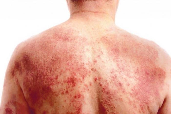 Pacientes con dermatitis atópica registran problemas emocionales
