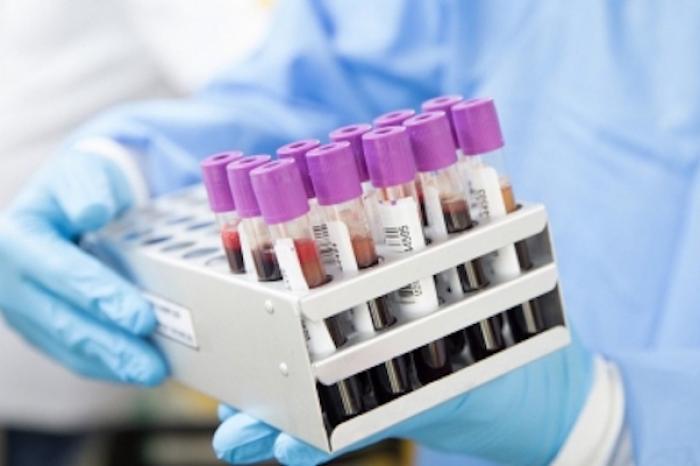 Un análisis de sangre podría predecir desarrollo de Esclerosis Múltiple